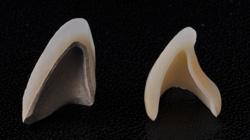 all-ceramic3