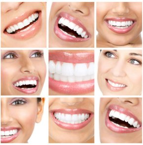 კბილების გათეთრება