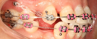 orthodontic_treatment