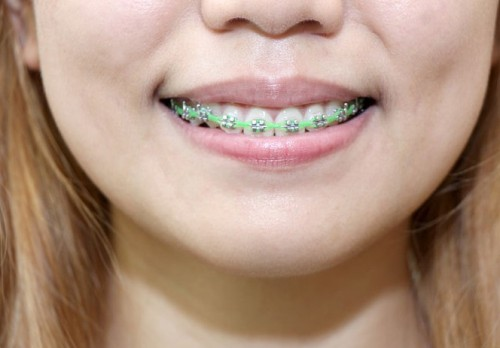 670px-Clean-Teeth-With-Braces-Step-11