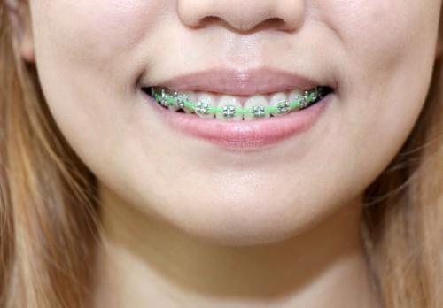 670px-Clean-Teeth-With-Braces-Step-11