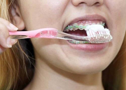 670px-Clean-Teeth-With-Braces-Step-3