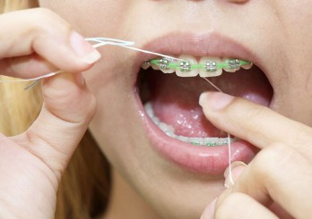 670px-Clean-Teeth-With-Braces-Step-7