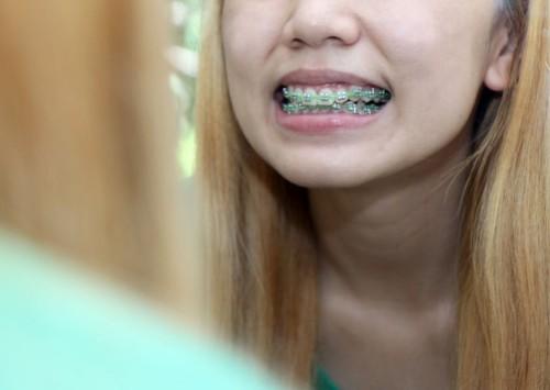 670px-Clean-Teeth-With-Braces-Step-8