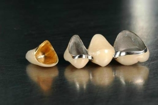 Porcelain_Fused_To_Metal_Semi_Precious_Crown