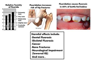 sdsdw-fluoride-flier