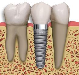 barrington-implant-between-2-teeth