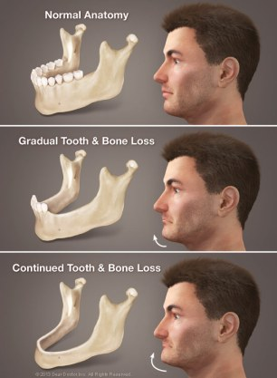 consequences-of-tooth-loss-large