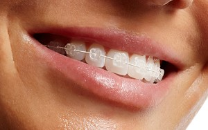 ceramic-braces-image-300x188