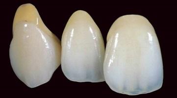 koronki-na-perednie-zuby