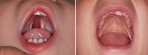 cleft-lip-and-palate-before-after-1