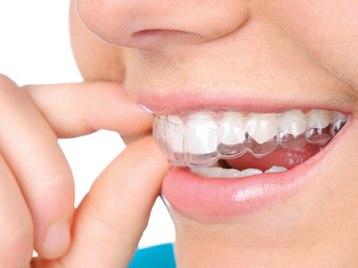 ehlajnery-dlya-vyravnivaniya-zubov